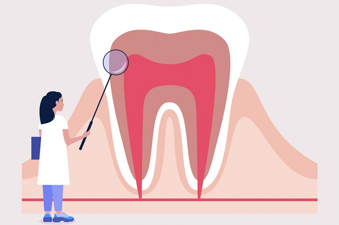 UKÄ spår fortsatt brist på tandläkare