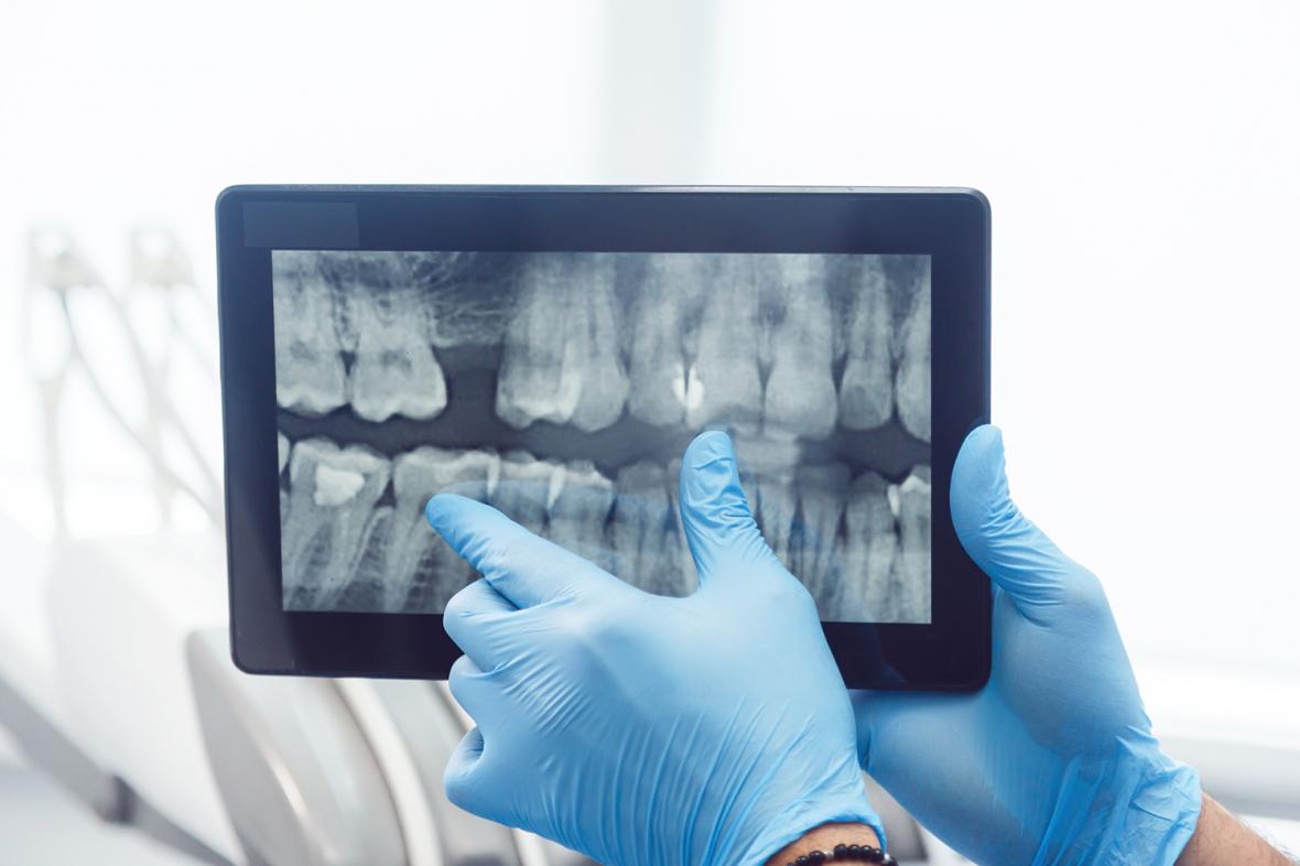 AI på väg in i tandvården