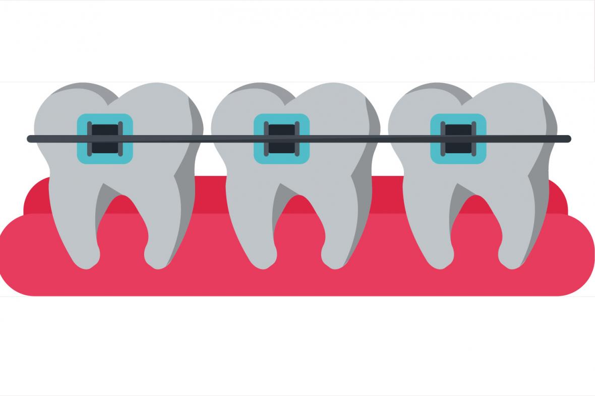 Estetisk tandvård kan hamna hos ARN