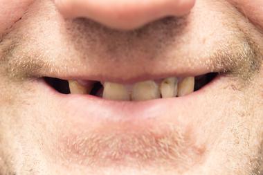Social klassresa påverkar tandhälsan